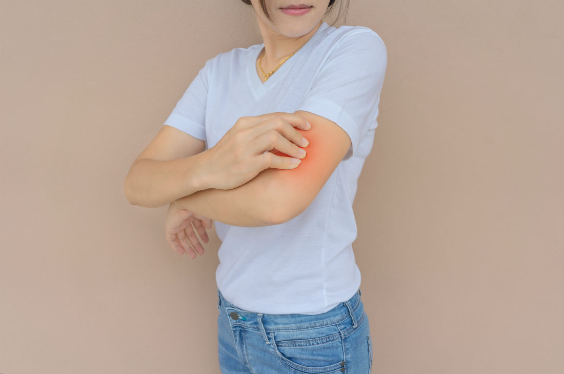 Read more about the article CBD Eczema Cream – End Your Skin Condition Issues With This Promising Product!